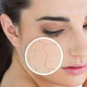 Picture for category Skin Condition Treatments